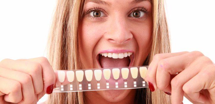 Como escolher uma clínica em São Paulo para clareamento dental?